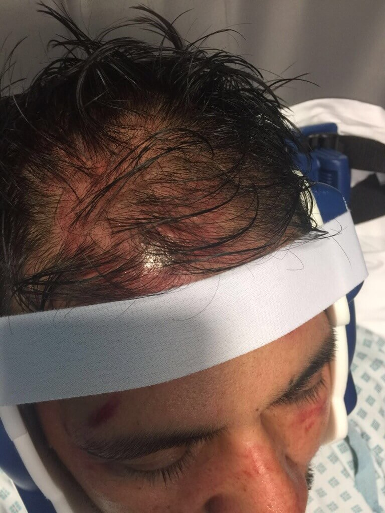 Another Hate Crime Attack in Rotherham. Afghan Taxi Driver Assaulted